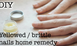 yellowed, brittle nails home remedy